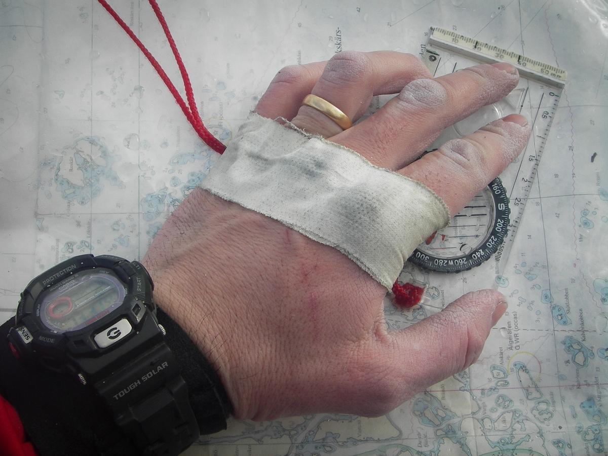 Skavsårstejpad hand håller en kompass mot ett sjökort.